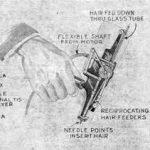 1921-hair-transplant-machine hair transplant technology