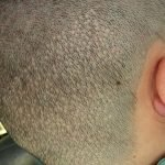 """FUE is not always """"scarless"""" so do your research thoroughly."""