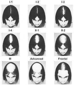 female-balding-ludwig