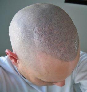 hair-transplant-cobblestoning