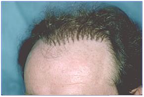 hair plug hair transplant