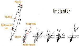 implanter pen hair transplant