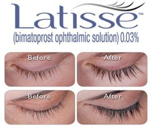 latisse_comparison_1