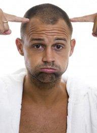 male-pattern-baldness-temple-recession