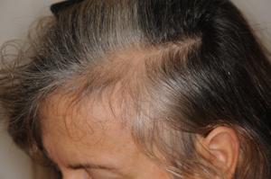 miniaturizing-hair-follicles