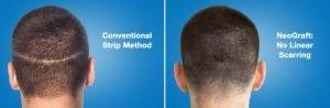 neograft hair transplant technology