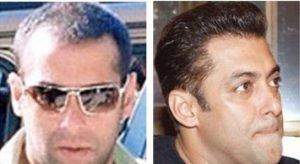 salman-khan-hair-transplant