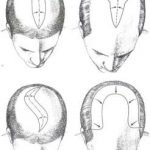 scalp-reduction-surgery is considered to be ancient and primitive hair transplant technology