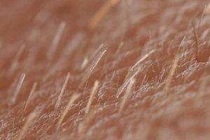 vellus hair