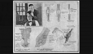 A Hair Transplant Machine in 1921?