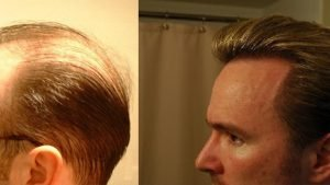 Zero Hair Transplant Cost For Repair?