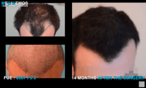 Dr. Lupanzula London FUE Hair Transplant Seminar & Video