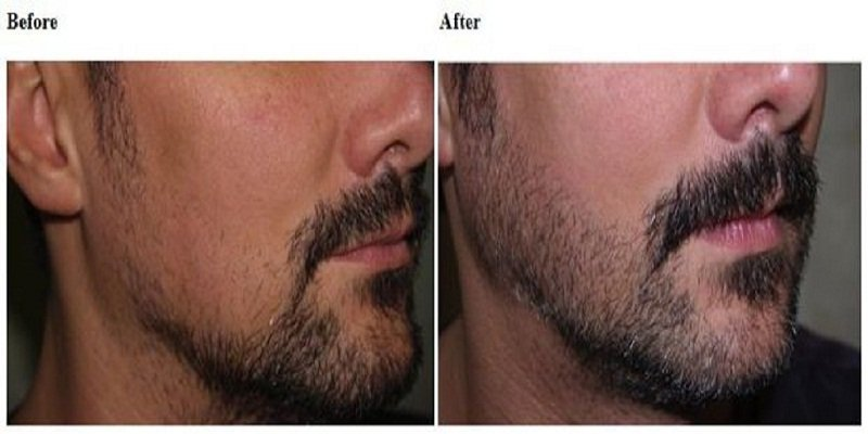 beard-transplant-before-after-pics