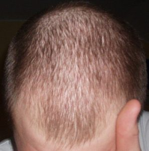 Diffuse patterned alopecia
