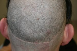 good donor scar