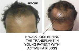 shock loss
