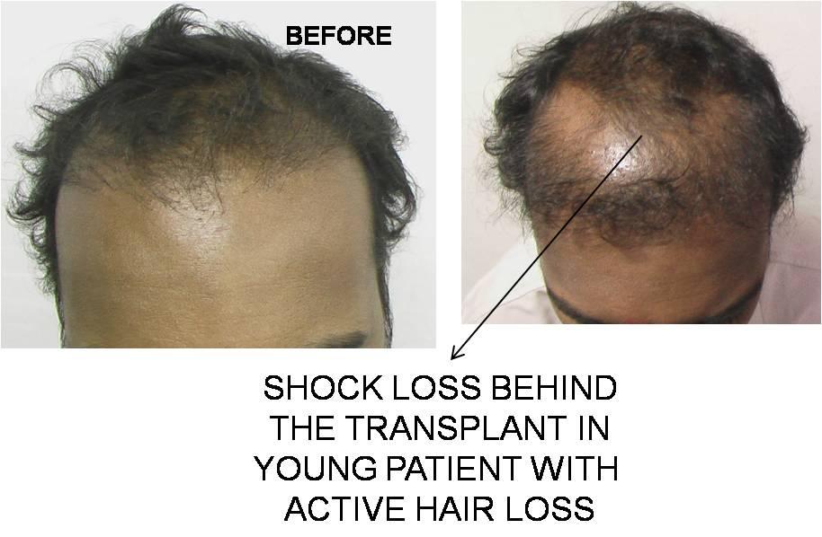 Shock Loss Learn How Hair Transplants Cause Shock Loss