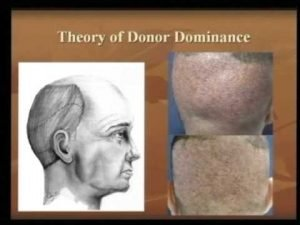 theory of donor dominance