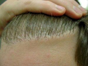 hair transplant ridging