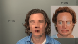 4K Ultra HD Hair Transplant Video Results