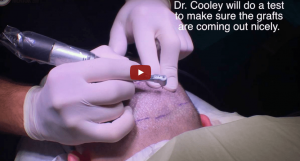 Hair Transplant Documentary – FUE Repair