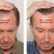 electrolysis hair transplant repair