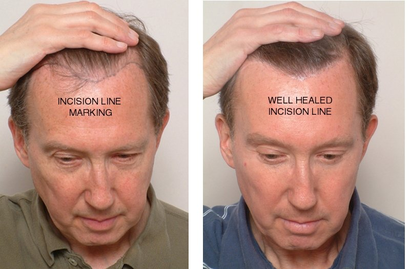 Electrolysis Hair Transplant Repair? - Hair Transplant Mentor