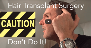 Do NOT Have Hair Transplant Surgery!!!