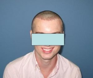 Chicago FUE hair transplant