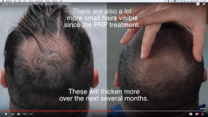 Early Hair Transplant Growth, FUE And PRP