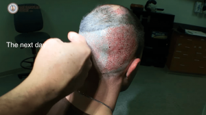 FUE Hair Transplant Surgery – Shapiro Medical #5!