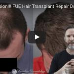 fue hair transplant repair video