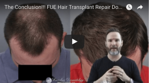 FUE Hair Transplant Repair Video Finale