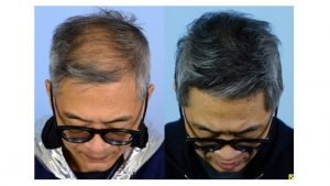 happy hair transplant patients