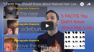Five Facts About Hair Loss You Didn't Know – The Norwood Scale