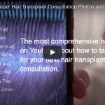 ONLINE HAIR TRANSPLANT CONSULTATIONS