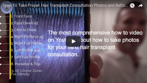 Online Hair Transplant Consultation Photos – A Tutorial