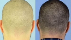 Scarless Hair Transplant Surgery – The Myth