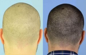 scarless hair transplant
