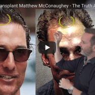 matthew mcconaughey hair transplant proof