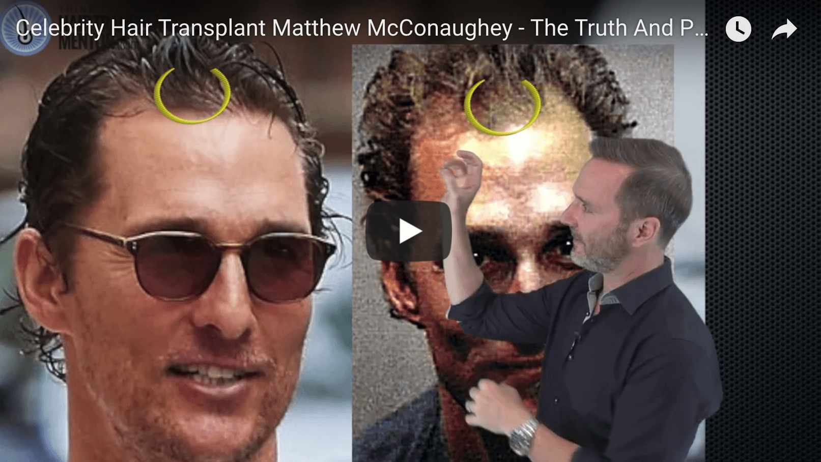 Matthew Mcconaughey Hair Transplant The Real Truth