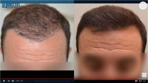 FUE Repair Case by Dr. Lupanzula