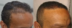 london hair transplant review