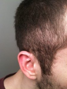 retrograde alopecia