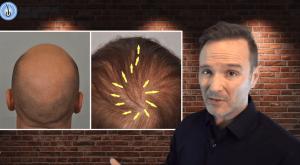 Atlanta Hair Transplant – Dr. John Cole
