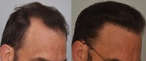 atlanta-hair-transplant-hairline