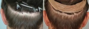 atlanta-hair-transplant-repair