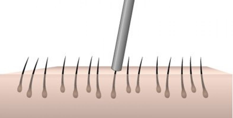 fue-follicular-unit-extraction