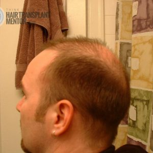 hair-transplant-repair-surgery-2-1-month-left-donor-zone-sept