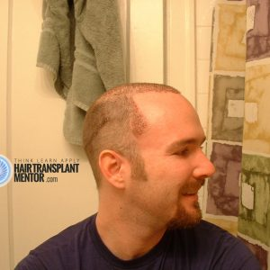 hair-transplant-repair-surgery-2-day-2-right-profile-temple-point-sept